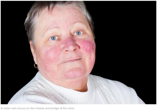 case of malar rash