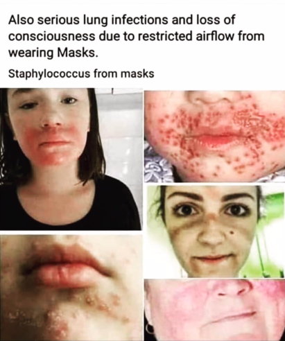 image falsely linking skin conditions to mask wearing